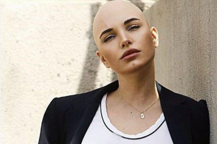 """Дарина Митченко """"потеряла"""" волосы после второй химиотерапии"""
